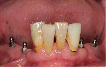 low cost dental implants in tampa